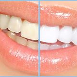 teeth whitening comparison
